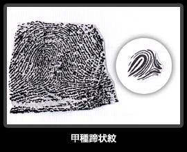 甲種蹄状紋