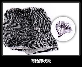 有胎蹄状紋