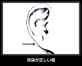 耳朶が乏しい相