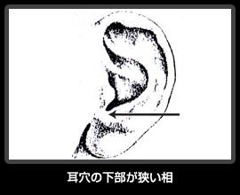 耳穴の下部が狭い相