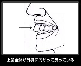 上歯全体が外側に向かって反っている