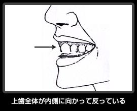 上歯全体が内側に向かって反っている