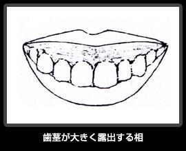 歯茎が大きく露出する相