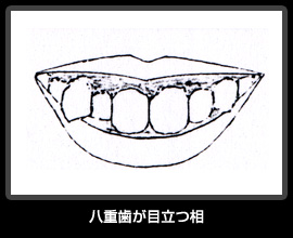 八重歯が目立つ相