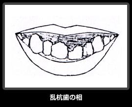 乱杭歯の相