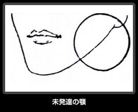 未発達の顎